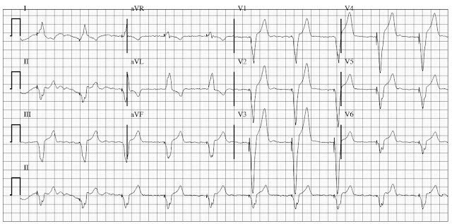 Ventricular pacing with underlying atrial fibrillation