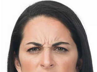 frown lines before treatment with botox