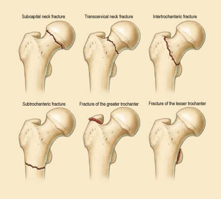 image of Subcapital Femoral Neck Fracture Icd 10 01