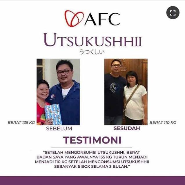 Jual SOP Subarashi Adalah - Obat Herbal Kencing Manis, Info di Luwu Utara. SOP Subarashii Vs Utsukushii.