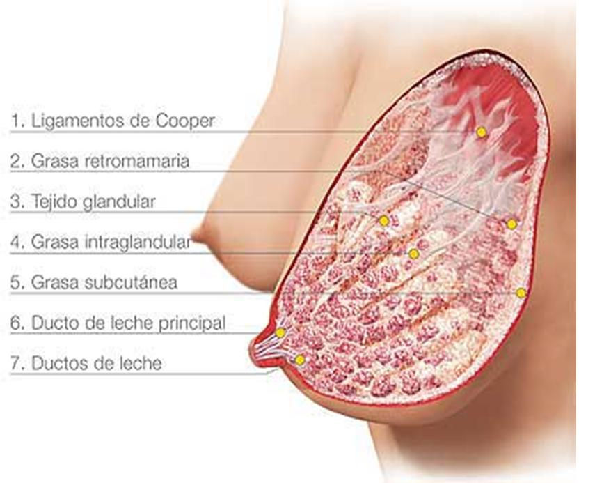 Sistema de aumento de mama Brava