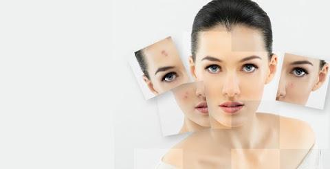 ROACUTAN - A solução para seu problema com acne!