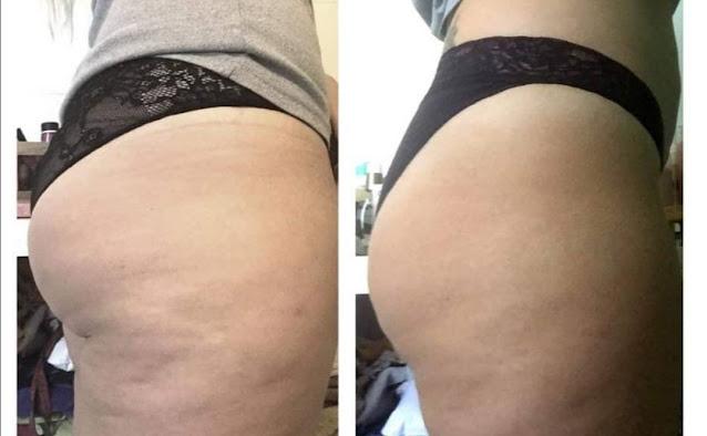 DIY crème beurre de karité pour éliminer la flaccidité des hanches et des cuisses