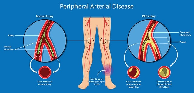 peripheral artery disease risk pad diagnosis