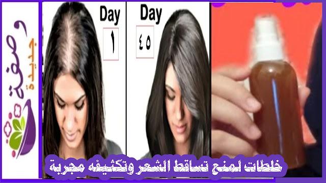 منع تساقط الشعر بحل سحري و طبيعي،علاج تساقط الشعرنهائيا خلال اسبوع،علاج تساقط الشعر بالزيوت،حل مشكلة تساقط الشعر،أفضل علاج لتساقط الشعر،علاج نهائي لتساقط الشعر،وثفة لمنع تساقط الشعر