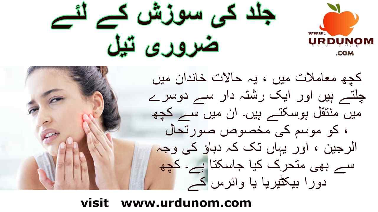 جلد کی سوزش کے لئے ضروری تیل   Healh and Beauty in urdu