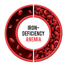Types of Anemia