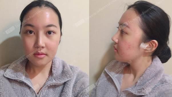 รีวิวศัลยกรรมผ่าโครงหน้า แก้จมูก และยกหน้าผากของเฟย EP.9 ตัดไหมแล้วค่า >_