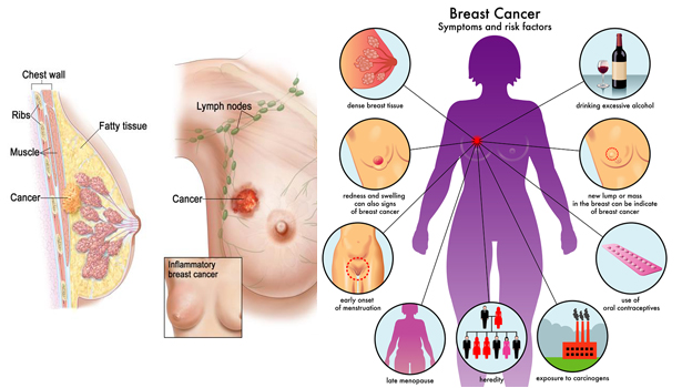 2tmTLfZ 8 Possible Ways to Prevent Breast Cancer