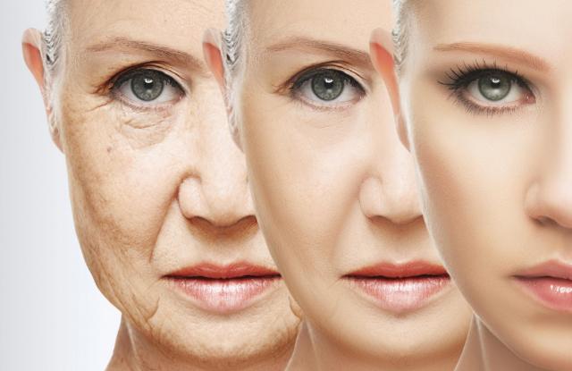 Cara 4 Mengatasi Tanda Penuaan di Wajah