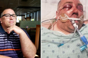 man brutally beaten and put in a coma after asking neighbors to lower music