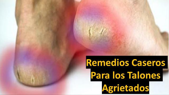 12 remedios naturales para dejar tus pies suaves