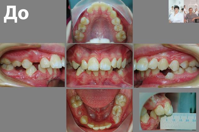 6 фото прикуса пациента в различных проекциях до начала ортодонтического лечения