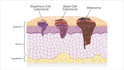 How To Identify And Prevent Skin Cancer By Following These Simple Guidelines