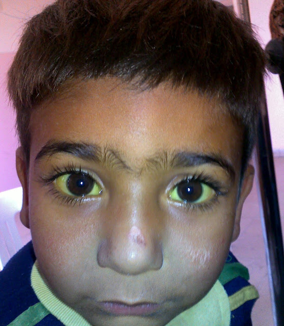 eyes of a patient with jaundice