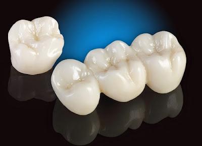 những điều cần biết về bọc răng sứ -11