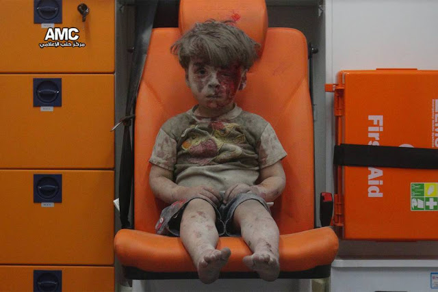 Imagem de criança ferida após ataque em Aleppo choca o mundo