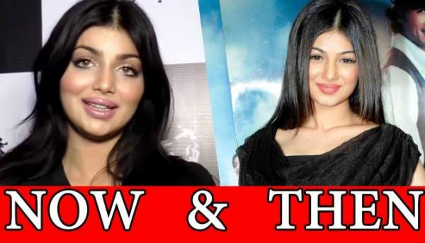 आयशा टाकिया plastic surgery now and then