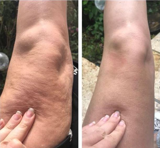 Ce qu'on doit savoir sur la cellulite et la bonne méthode pour l'éliminer