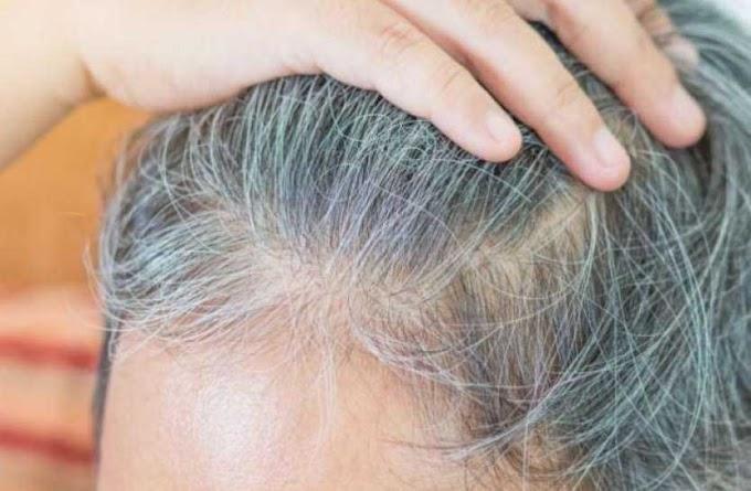 बालों को जड़ से काला करने का उपाय | Balo Ko Jad Se Kala Karne Ka Upay