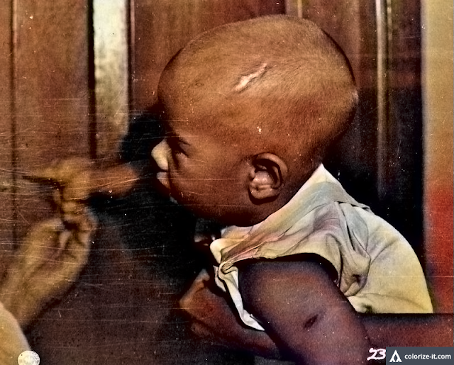 Photo of 1-year old baby with bayonet scar on his head.  Image source:  United States National Archives.