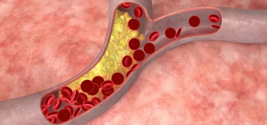 Cara Mengobati Pembuluh Darah Tersumbat