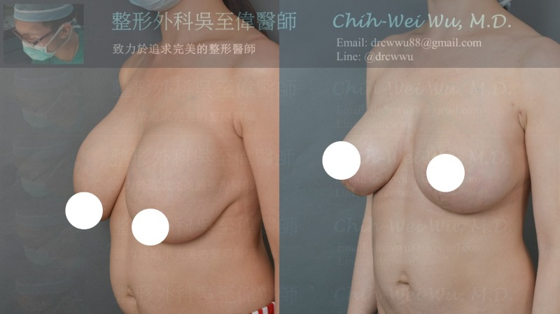 2020年10月最新隆乳重建案例,此案例為三度莢膜攣縮合併三度乳房下垂,接受二次隆乳手術,完整的改善其問題