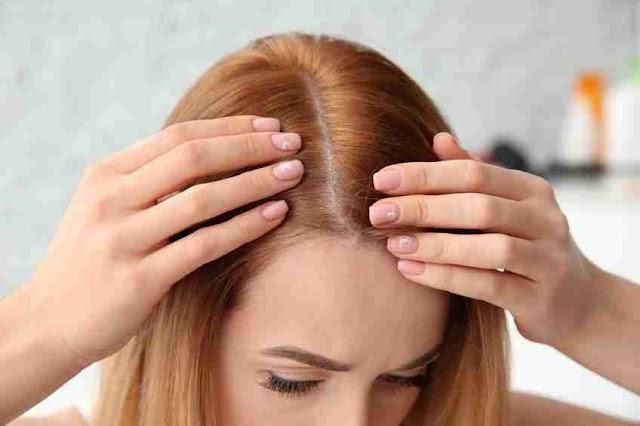 চুল কেন পড়ে ? (Why hair loss)
