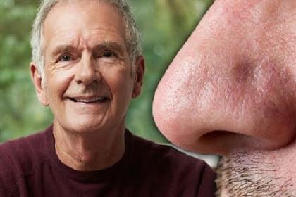Tanda Penyakit Parkinson di Hidung yang Kerap Diabaikan