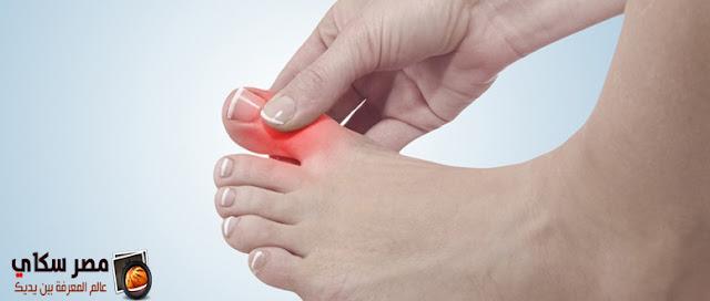 أعراض النقرس ( داء الملوك ) بالصور والفيديو gout