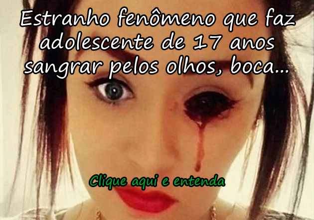 http://www.pitacodoblogueiro.com.br/garota-sofre-com-misterio-que-faz-sangrar-seus-olhos-ouvidos-cabeca-e-boca/