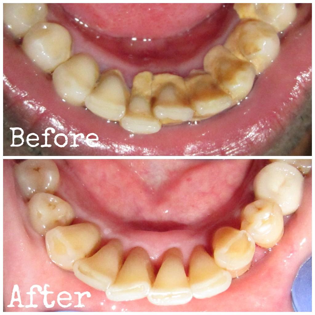 DENTAL TALKS: What Is Scaling Of Teeth