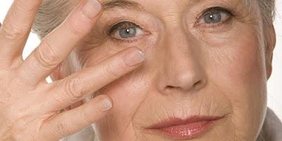 Cách trị nếp nhăn trên mặt đơn giản hiệu quả