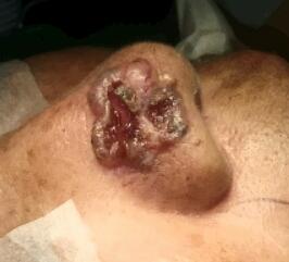Lesión en piel, Carcinoma Basocelular