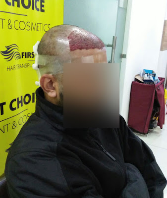 hair transplant result pic