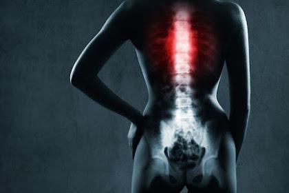 Penyebab Skoliosis dan Cara Mendiagnosanya