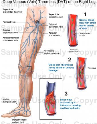 Dor aguda nas costas da perna acima do joelho