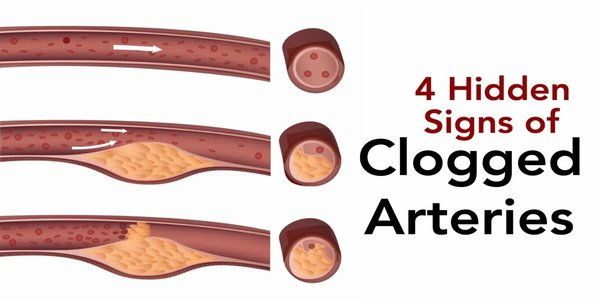 4 Hidden Signs of Clogged Arteries