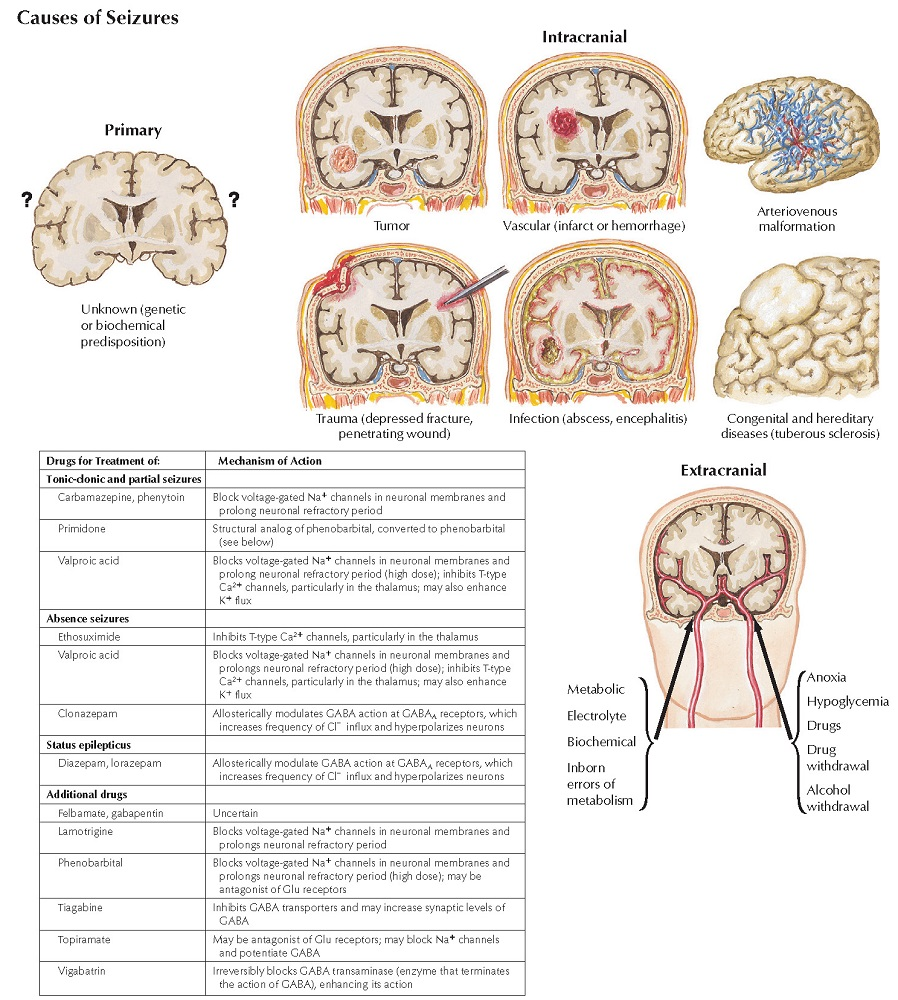 Causes of Seizures and Their Treatment