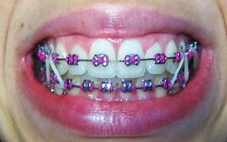 Todo lo que debes saber sobre tu sonrisa y la de tus hijos se pueden colocar los brackets - Como alinear los dientes en casa sin brackets ...