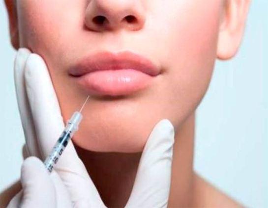 tipos de preenchimento labial