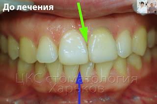 Смещение центр  верхних зубов