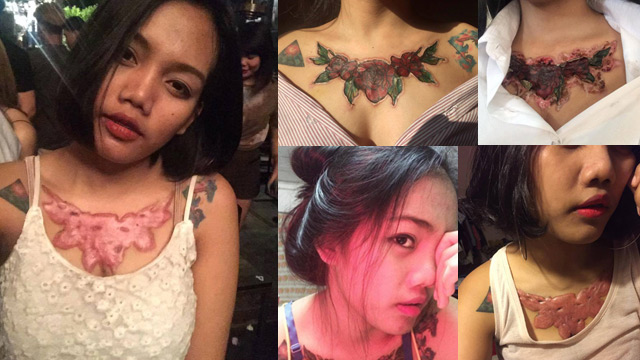 Thai Student Left with A Horrible Scars after Applying Tattoo Remover