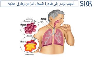 أسباب تؤدي إلى ظاهرة السعال المزمن وطرق علاجه