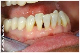 kontaktpunkte der zähne