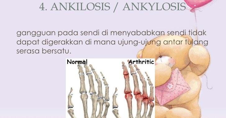 Cara menyembuhkan nyeri otot kaki