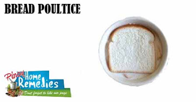 Home Remedies For Boils and Abscesses: Bread Poultice