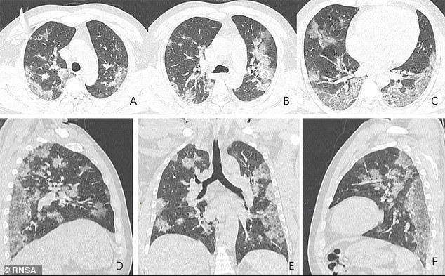 Hình ảnh trực quan mà SARS-CoV-2 gây ra với phổi của người bệnh