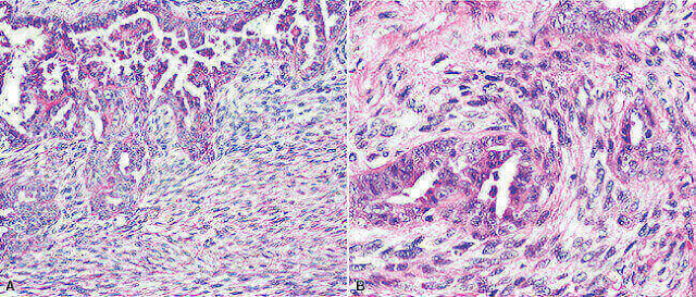 Epithelioid Mesothelioma