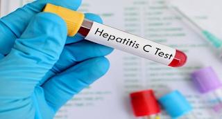 Ηπατίτιδα C: Ειδοποίηση για να εξεταστούν όλοι όσοι έχουν γεννηθεί μεταξύ 1945 - 1980